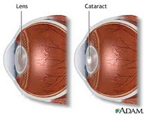 cataracts-blog