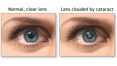 normal-pupil-cataract-pupil