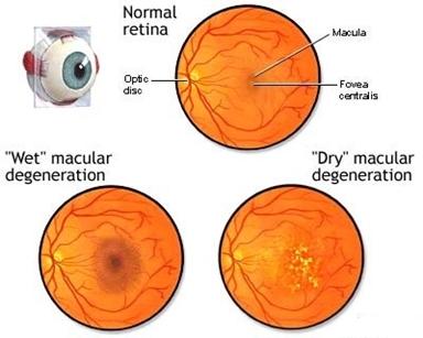 retina-amd