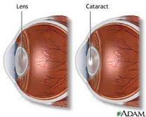 cataracts-blog