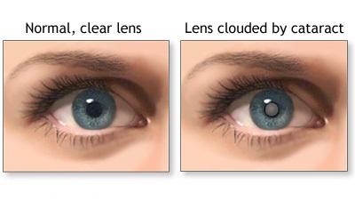 normal-pupil-cataract-pupil